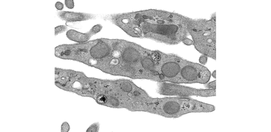 plateletsmicroscopy_scaled_new.png